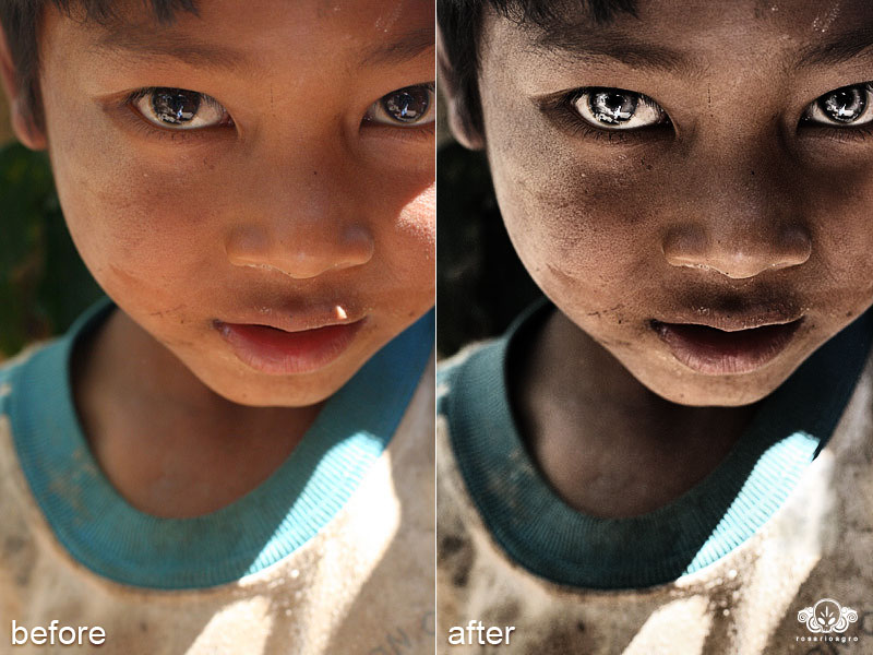 photo-child-before-after